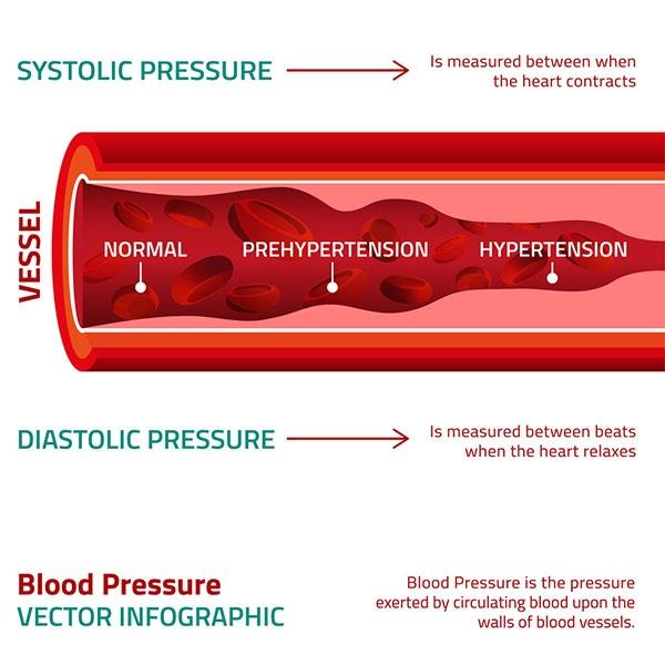 Consulte las pautas para la hipertensión